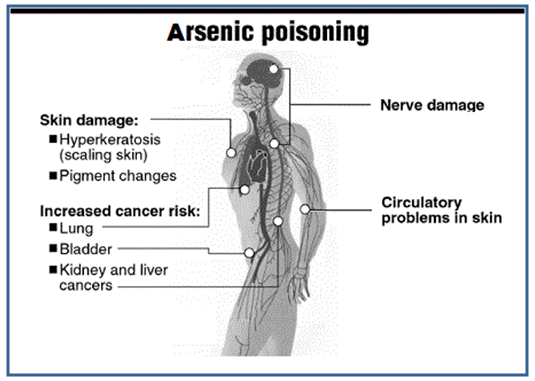 Arsenic Poisoning Of Water And Rampant Cancer Outbreaks In